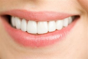 Professional teeth whitening in Sarasota Florida